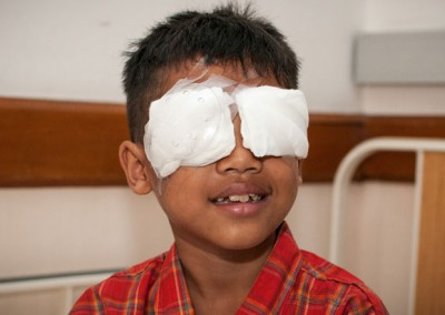 Children's Cataract Surgery