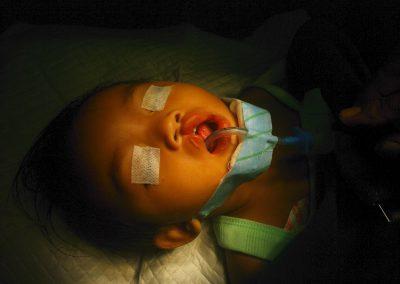 Children's Corrective Surgery