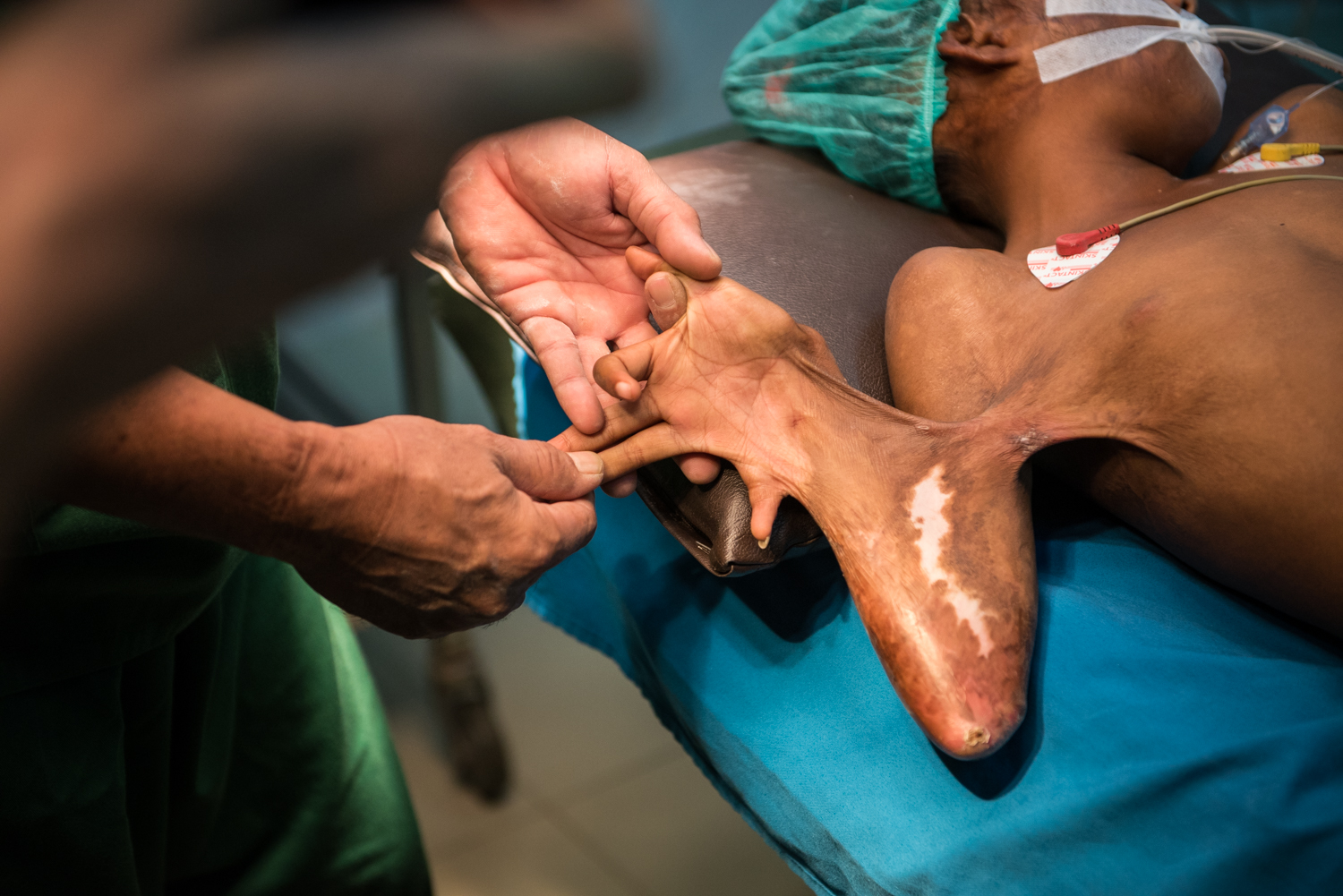 Surgical Training Session In Burns Treatment