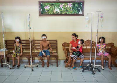 Children's Cataract Surgery